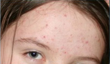 After Treatment with Loma Psoriasis
