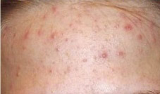 Before Treatment with Loma Psoriasis